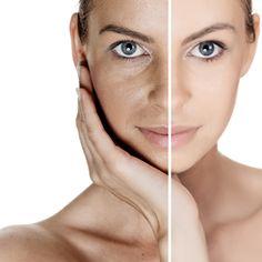 HIFU- Skin Lifting